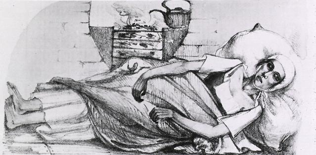 """Lithografie van een meisje in Zwitserland, dat aan cholera stierf, November, 1831."""""""